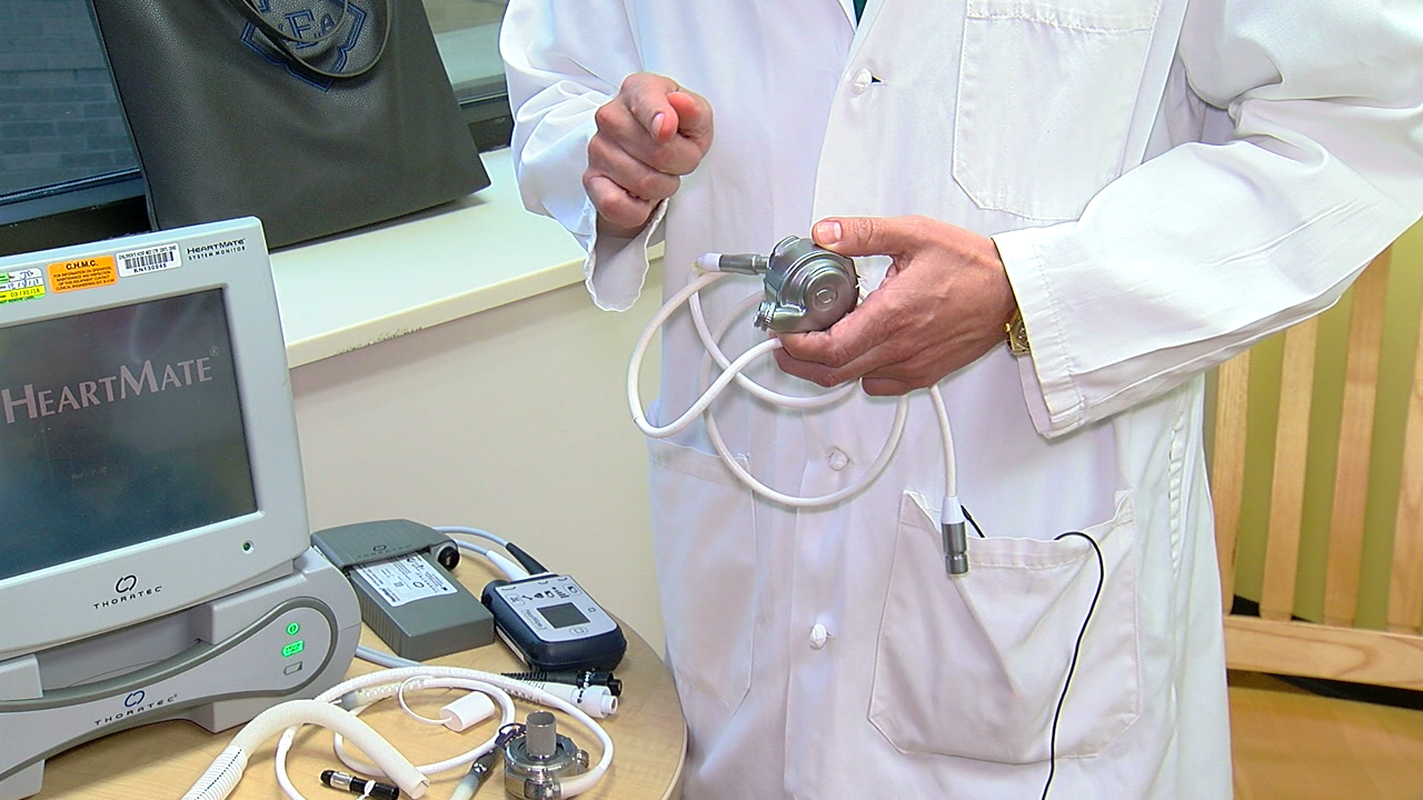 KY man first in the world with device to fight heart disease (WKRC)