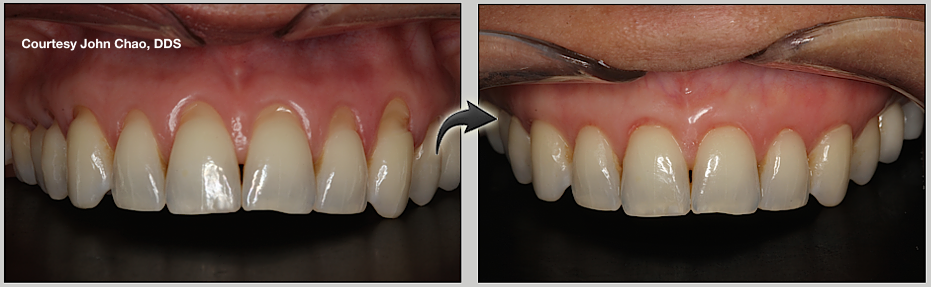 Before and after of entire mouth that required pinhole gum rejuvenation.{&amp;nbsp;}(Dr. John Chao)<p></p>