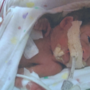 Community rallies behind local baby born four months early