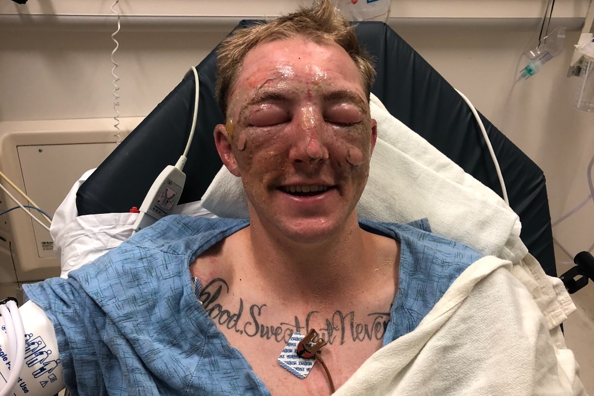 Northern California firefighter Brandon Feller suffered burns to his face Thursday while fighting the Klamathon fire.