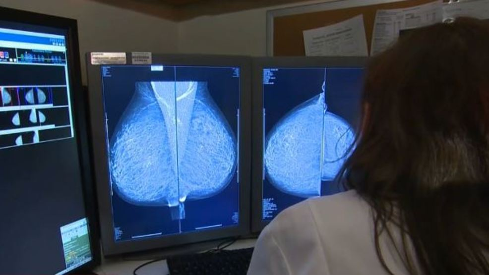 KUTV Breast cancer blood test 101017.JPG